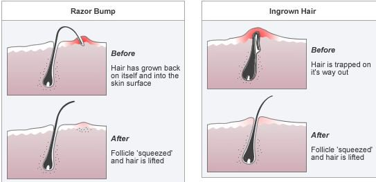 Shows how the appearance razor bumps (extrafollicular penetration) and ingrown hair (transfollicular penetration) are influenced by the way they were formed (Image from: wiseshe.com)