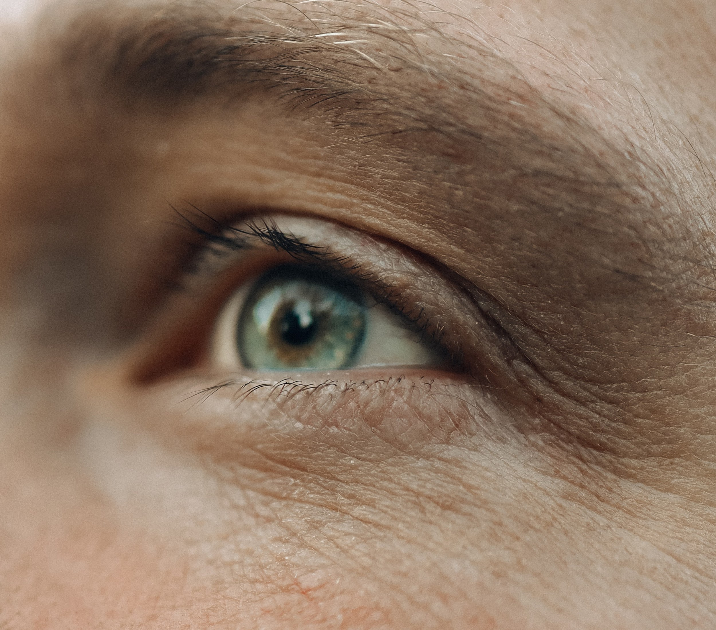 Close-up of wrinkled eye (From:Pexels).