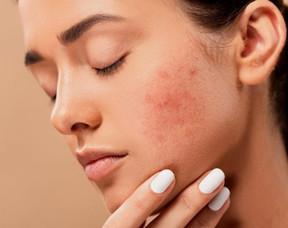 A woman with a cluster of acne on her cheek. (Photo from: Pixabay)