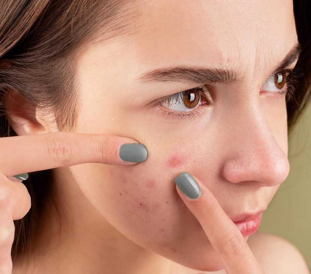 Woman frustratingly pointing at a pimple (From: Pexels)
