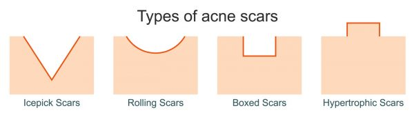 An infographic showing the different types of acne scars: icepick, rolling, boxed, and hypertrophic. (Photo from: 123rf)
