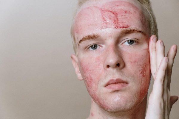 Man after using dermaroller (From: Pexels)