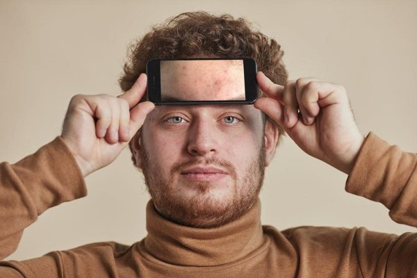 Man showing his forehead acne (From: Pexels)