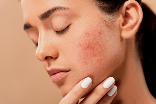 A woman who suffers from fungal acne on her right cheek. (From: Pixabay)